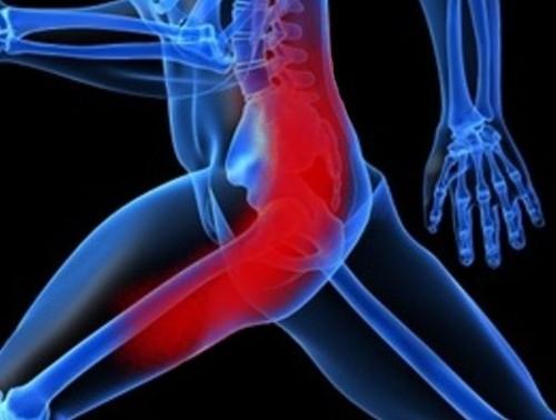 Почему без причины болят мышцы ягодиц?