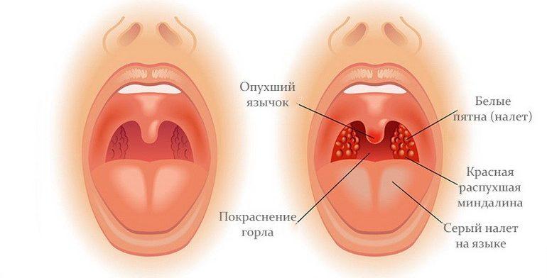 5 запрещенных приемов при лечении тонзиллита