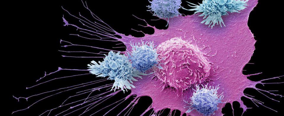 Эффективность противораковой терапии можно предсказать по активности двух генов