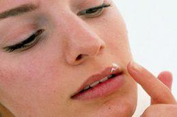 7 народных методов, которые помогут тебе избавиться от герпеса