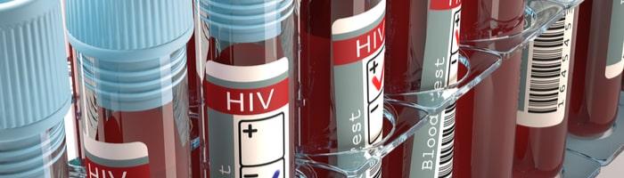 Эпидемия ВИЧ затихает в мире, но набирает обороты в России