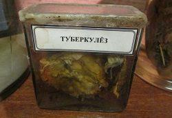 В Казахстане выявили эпидемию туберкулеза