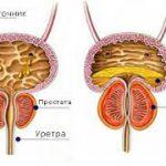 Ученые определили генетические факторы риска развития доброкачественной гиперплазии предстательной железы