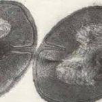Стартап Ульяновского наноцентра получил патент на быстрый способ выявления кокковых инфекций