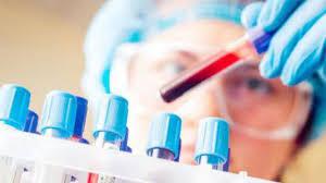 Простой анализ крови покажет реальный риск развития инфекционного заболевания