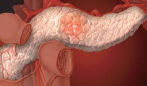 Острый панкреатит связали со смертельным заболеванием