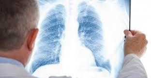 Университет Глазго нашел новый метод лечения астмы и ХОБЛ