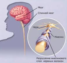 FDA одобрила применение противоопухолевого офатумумаба для лечения рассеянного склероза