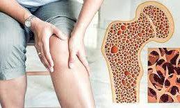 В США появится эффективное средство против остеопороза