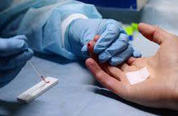 ООН: на 33% снизилась смертность от связанных с ВИЧ причин