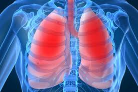 Пневмония химическая