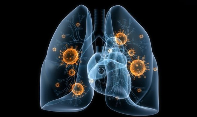 Если вы страдаете от грибковой инфекции легких