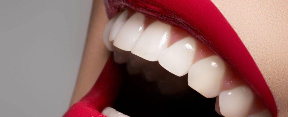 Белоснежная улыбка — визитная карточка успешного человека