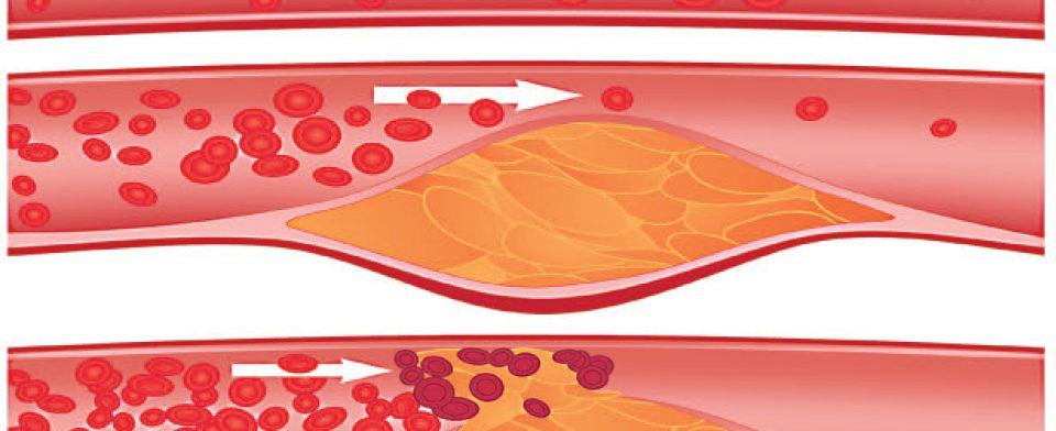 Облетирирующий атеросклероз – симптомы болезни, лечение
