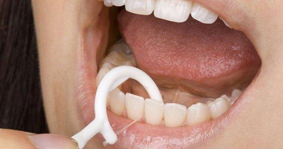 Пародонтоз — чем опасен для зубов и десен