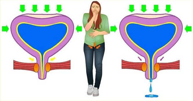 Лечение слабого мочевого пузыря и упражнения при недержании мочи