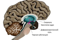 Признаки болезни Паркинсона у ребенка