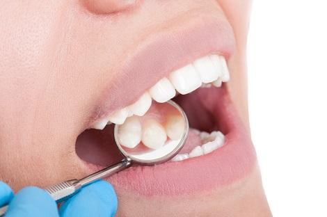 Что такое пульпа зуба в аспекте стоматологического лечения