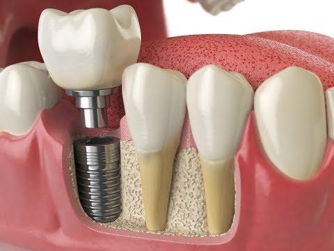Зубные импланты: какие выбрать и насколько они качественны?