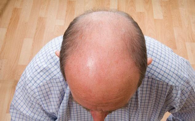 """Современные решения для восстановления густоты волос, """"Hair For Ever"""""""