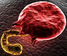 Малярия – симптомы, причины, виды, лечение и профилактика малярии