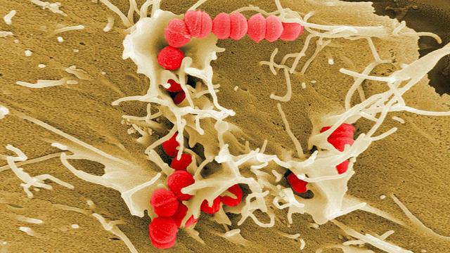 Ученые рассказали, почему скарлатина возвращается