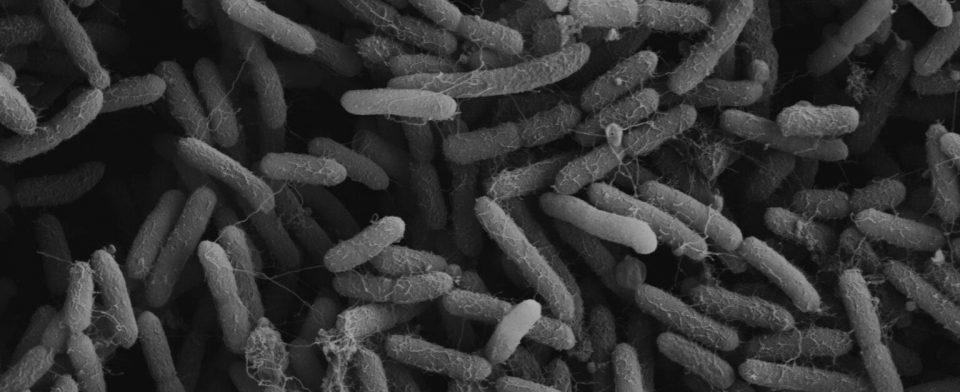 Птичьему гриппу трудно выйти из человеческой клетки