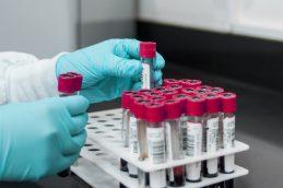 Безопасность, бизнес, трата времени? — в Тюмени обсуждают тесты на ВИЧ