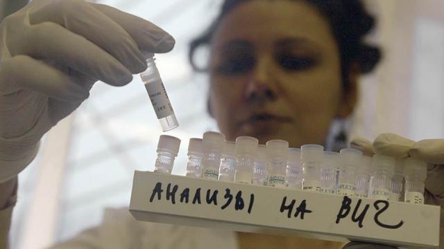 В Калужской области 72% инфицированных ВИЧ — жители в возрасте 30–39 лет