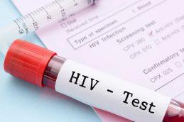 НаВологодчине увеличилось количество заразившихся ВИЧ-инфекцией